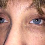 Närbild på mina nya ögon.